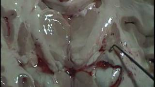 NEUROANATOMÍA 2.0: Corte Coronal De Encéfalo (Corte De Charcot): Disección (3)