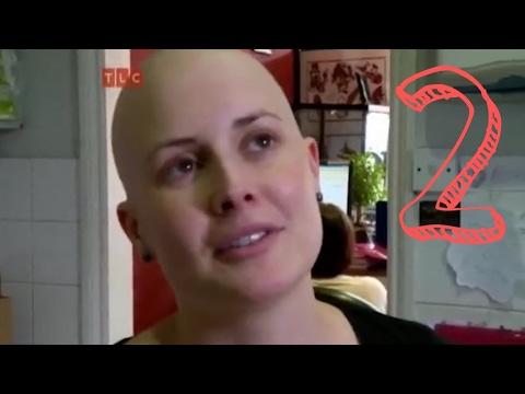 Алопеция Отрывки из телепередачи 2 сезон 2 выпуск (видео)