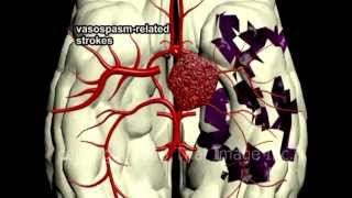 Circle Of Willis Anatomy And Brain Aneurysms Video - Animation And Narration By Cal Shipley, M.D.