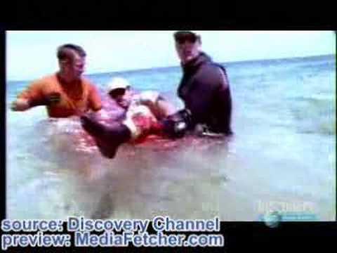 Tiburon ataca a un humano y le come la pierna