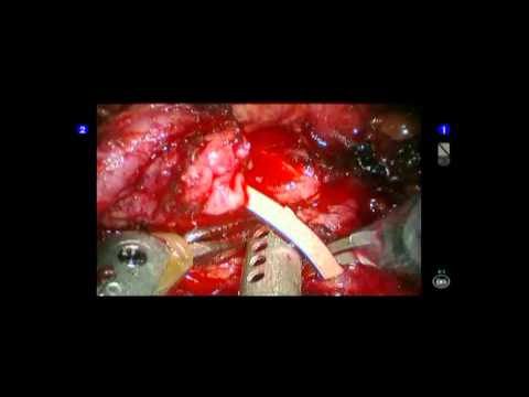 Left Sided Single Incison Robotic Pyeloplasty