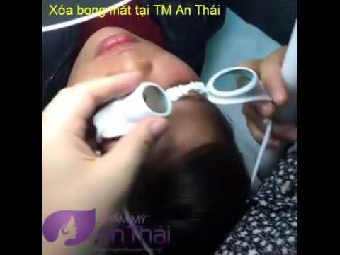 Xóa bọng mắt tại Thẩm mỹ An Thái