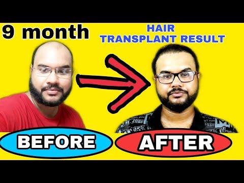 HAIR TRANSPLANT ?? RESULT ??? ???? ?? DEPEND ???? ???? #TANNUDADA_A plasztikai sebészet kulisszatitkai. A legmodernebb eljárások, és orvosi hibák. Szilikon völgy