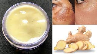 DIY Ginger Cream | Remove Pigmentation, Dark Spots & Acne Scars| Anti-Aging & Skin Lightening Cream