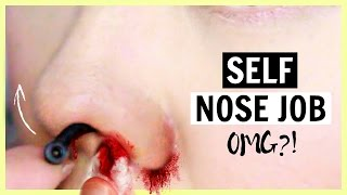 Video Self Nose Job?! Rhinoplasty Stealth First Impression MP3, 3GP, MP4, WEBM, AVI, FLV November 2018