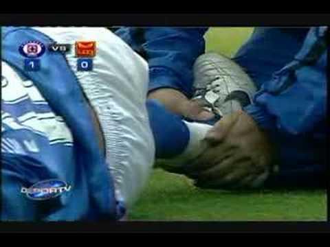 Lesión de fútbol - Edgar Andrade