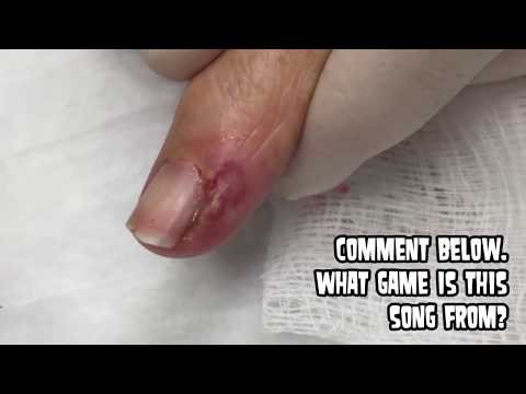 Dr. John Gilmore: Finger Infection Extraction