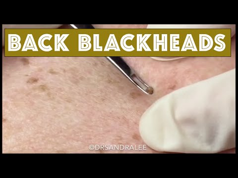Blackhead extractions on the back, plus a surprise…