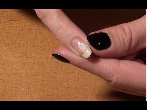 comment réparer ongle cassé