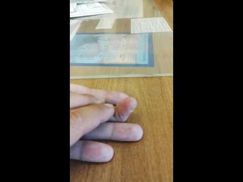 Результат пластики сухожилия сгибателя после его разрыва с нагноением