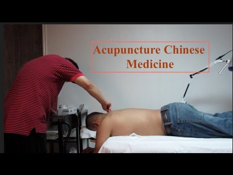 VLOG #9 Acupuncture Chinese Medicine ~ Crazy Cows at Movies