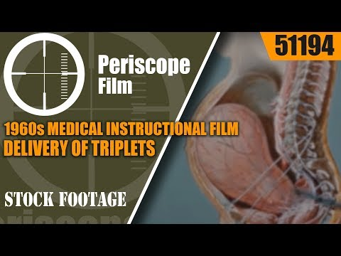 Video 1960s MEDICAL INSTRUCTIONAL FILM DELIVERY OF TRIPLETS w/ LOW SPINAL ANESTHESIA 51194 download in MP3, 3GP, MP4, WEBM, AVI, FLV January 2017