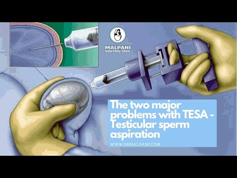 The 2 Major Problems with TESA (Testicular Sperm Aspiration) #drmalpani #malpaninifertilityclinic