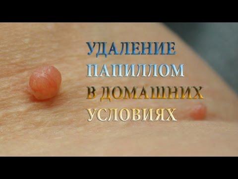 Лечить папилломы в домашних условиях