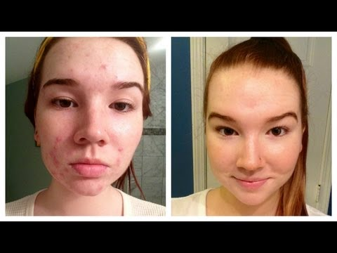 How I Cleared My Acne (+ Before & After Pictures)