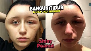 Video Wanita Ini Shock Melihat Kepalanya Jadi Seperti Bohlam, Penyebabnya Tak Terduga MP3, 3GP, MP4, WEBM, AVI, FLV Mei 2019