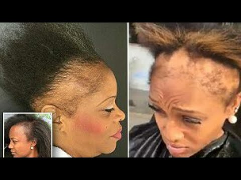 GET THOSE EDGES BACK/ HOW TO GROW OUT EDGES AND BOLD SPOTS FAST( POWERFUL CREAM)