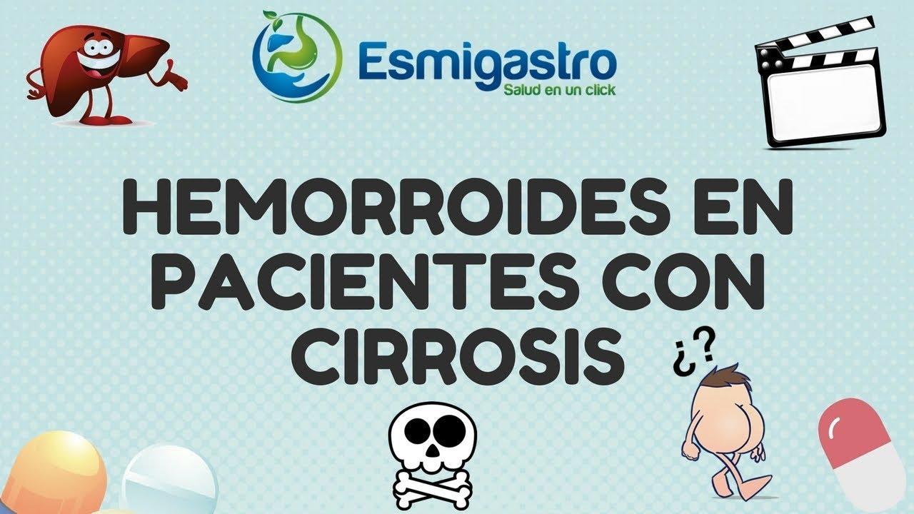 Hemorroides en pacientes con cirrosis
