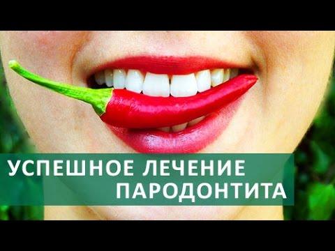 Лечение десен .Пародонтология: Лечение заболеваний десен,удаление зубного камня.ЦЭЛТ