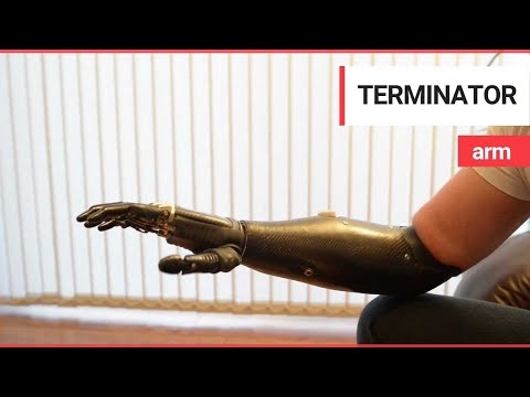 prosthetic - More info about this amazing prosthetic can be found here http://bebionic.com A father who lost his arm in an accident six years ago has been given a new lea...