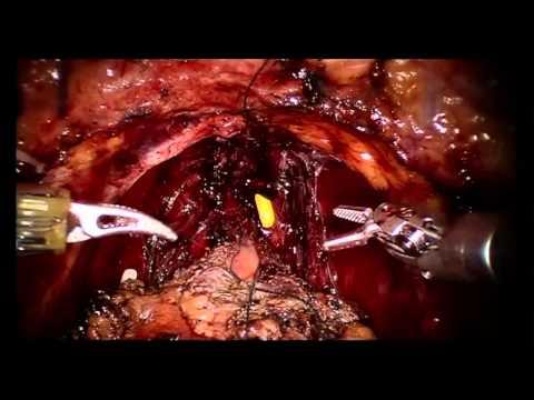Schiefelbein/Plhal: Radikale Prostatovesiculektomie mit NGB-Erhalt