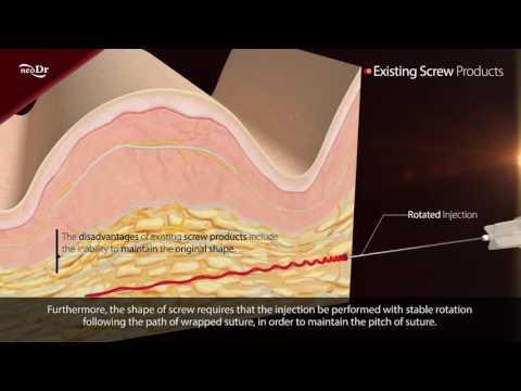 CAVERN SCREW Dr. Perfect V-Line