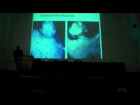 GI   Emergency          Dr  Ahmed Hamdy   4