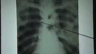 Video phân biệt hình ảnh mốc với tổn thương bệnh lý ở phổi