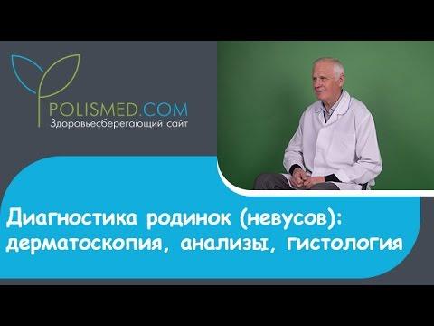 Диагностика родинок (невусов): дерматоскопия, анализы, гистология