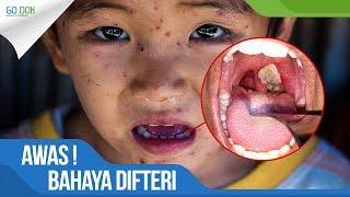 Download Video AWAS! BAHAYA DIFTERI yang Berdampak pada KEMATIAN Sedang Mengincar ANDA!  / Go Dok Indonesia MP3 3GP MP4