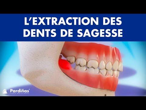 Extraction de dent de sagesse et péricoronarite ©