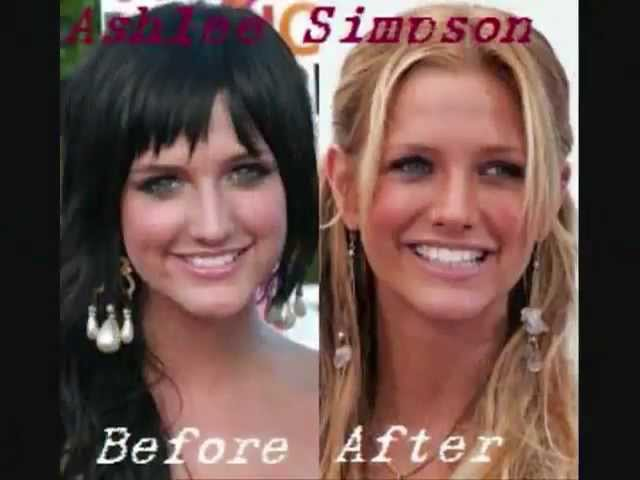 OMG! 23 FAMOUS CELEB PLASTIC SURGERY FAILED? JUST BEFORE AND ALSO AFTER PICTURES, Genuine??