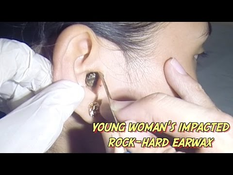 Young Woman's Impacted Rock-Hard Earwax Removal