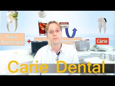 Placa Bacteriana, Cárie Dentária e Açúcar