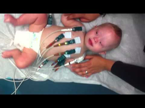 Watch video Down Syndrome baby getting an EKG