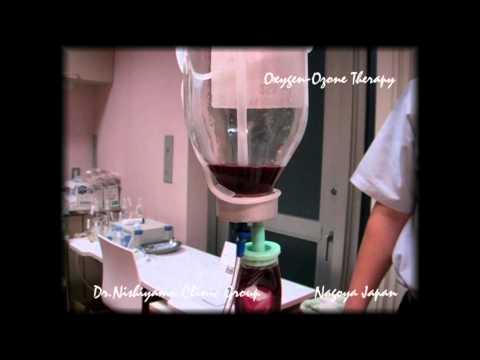 NAGOYA Medical Oxygen-Ozone Therapy (血液クレンジング療法)