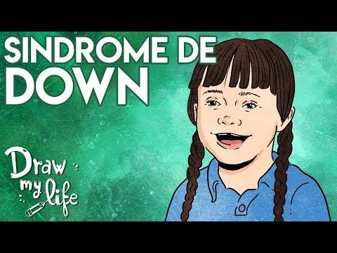 Veure vídeoSÍNDROME de DOWN ¿QUÉ es? | Draw My Life