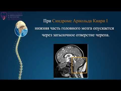 Синдром Арнольда Киари, сирингомиелия, сколиоз - Барселонский Институт Киари