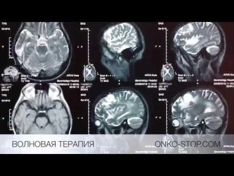 Успешное лечение 4 стадии рака легких, метастазы в голове.
