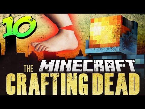 Minecraft Crafting Dead Mod Pack 10 | TY'S BROKEN LEFT FOOT! – Walking Dead in Minecraft