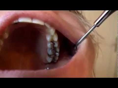 dental fetish -