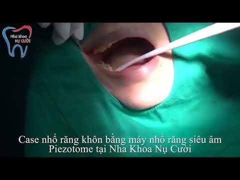 Nhổ răng khôn bằng Máy nhổ răng siêu âm Piezotome
