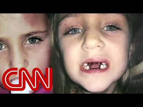 Dentist hits children, and wrongfully pulls children's teeth, and performs unnecessary procedures on children to make millions from Medicaid.