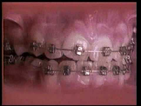 Straight Teeth in 60 Seconds