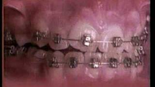 How Braces Work In This Amazing Time-Lapse