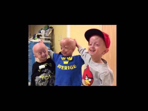 Play The Progeria Research Foundation