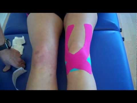 athletic taping and bracing pdf