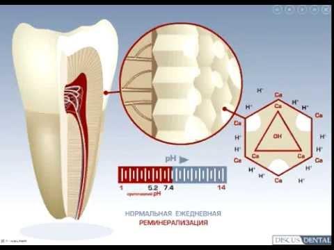 Лечение эмали во время отбеливания зубов