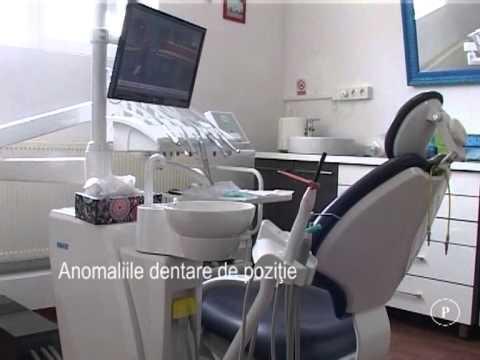 Anomaliile dentare de poziţie