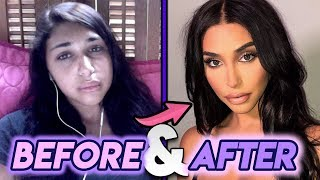 Chantel Jeffries | Before and After Transformations | Plastic Surgery Transformation